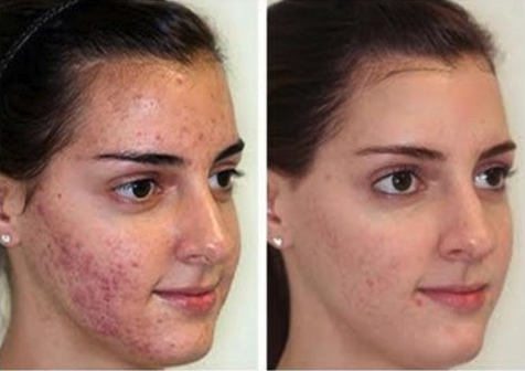 Cure Acne